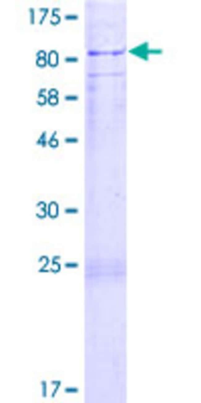 AbnovaHuman SOCS5 Partial ORF (AAH32862, 1 a.a. - 110 a.a.) Recombinant