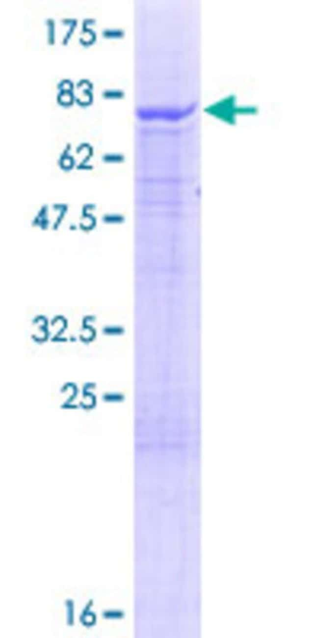 Abnova™ Human IQCB1 Full-length ORF (NP_001018865.1, 1 a.a. - 465 a.a.) Recombinant Protein with GST-tag at N-terminal 10μg Abnova™ Human IQCB1 Full-length ORF (NP_001018865.1, 1 a.a. - 465 a.a.) Recombinant Protein with GST-tag at N-terminal
