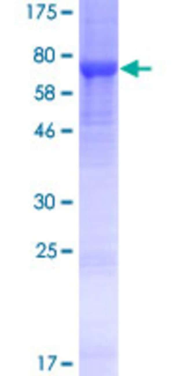 Abnova™Human LRRC14 Full-length ORF (NP_055480.1, 1 a.a. - 493 a.a.) Recombinant Protein with GST-tag at N-terminal 25μg Abnova™Human LRRC14 Full-length ORF (NP_055480.1, 1 a.a. - 493 a.a.) Recombinant Protein with GST-tag at N-terminal