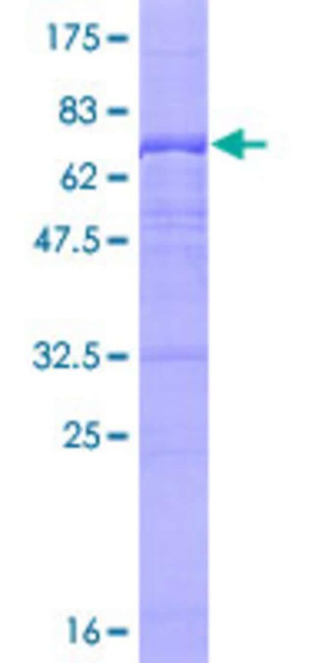 AbnovaHuman UBE3C Full-length ORF (AAH26241.1, 1 a.a. - 404 a.a.) Recombinant