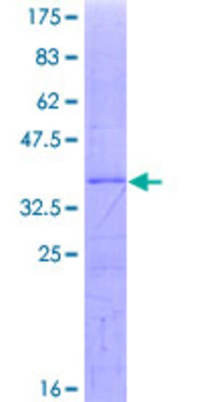 AbnovaHuman UBE3C Partial ORF (NP_055486, 599 a.a. - 698 a.a.) Recombinant
