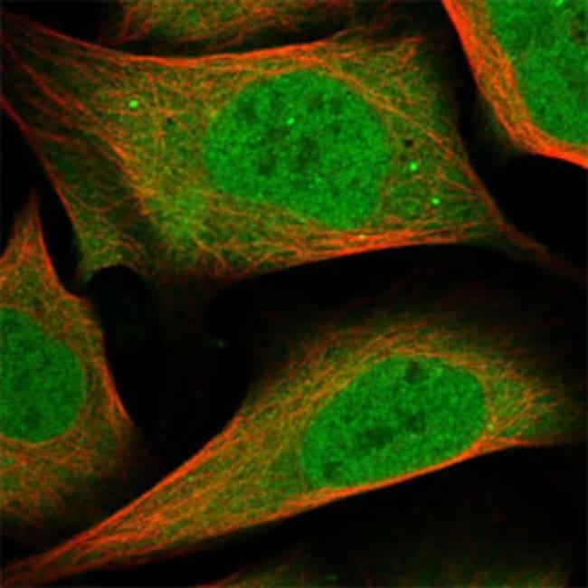 FGFR4 Rabbit anti-Human, Polyclonal Antibody, Abnova 100μL; Unlabeled:Antibodies