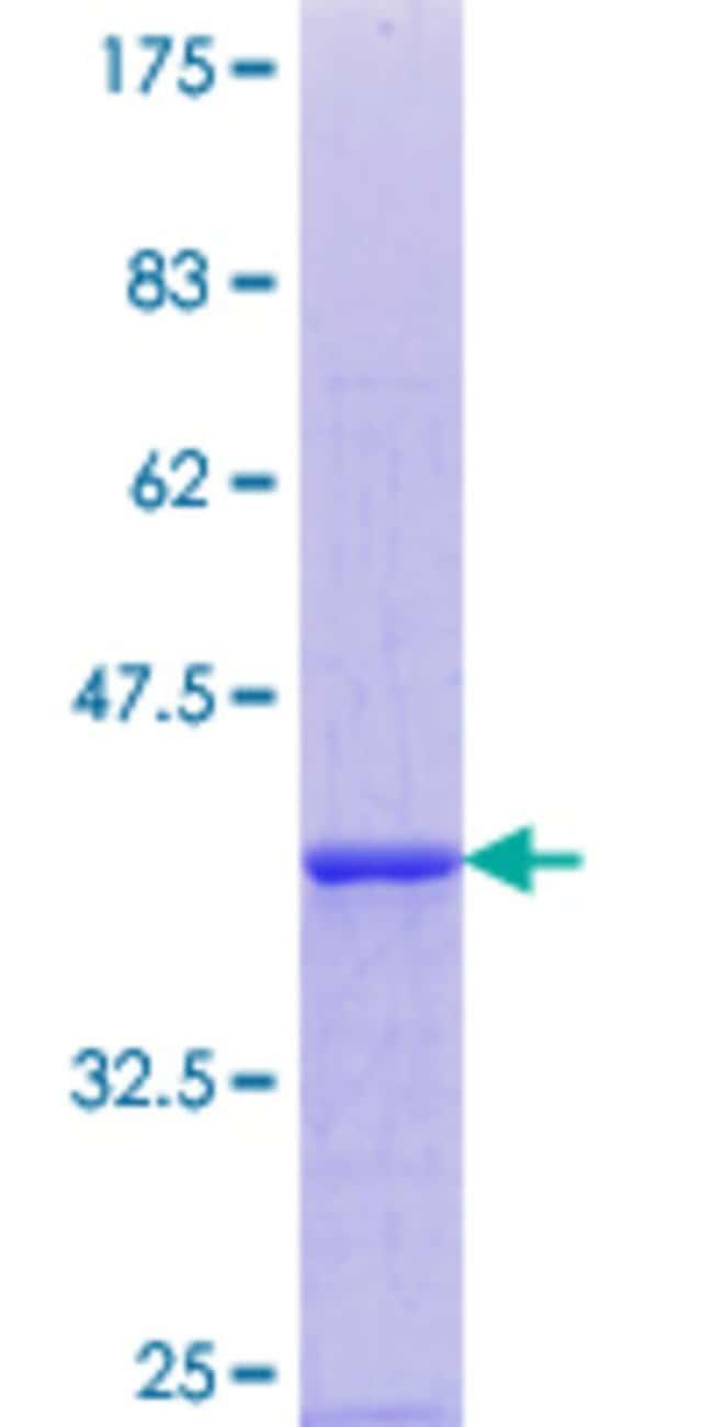 AbnovaHuman EDEM1 Partial ORF (NP_055489.1, 559 a.a. - 656 a.a.) Recombinant