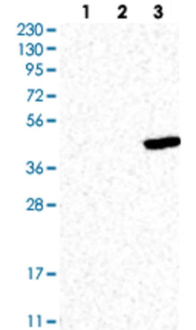 FAS Rabbit anti-Human, Polyclonal , Abnova 100μL; Unlabeled:Antibodies