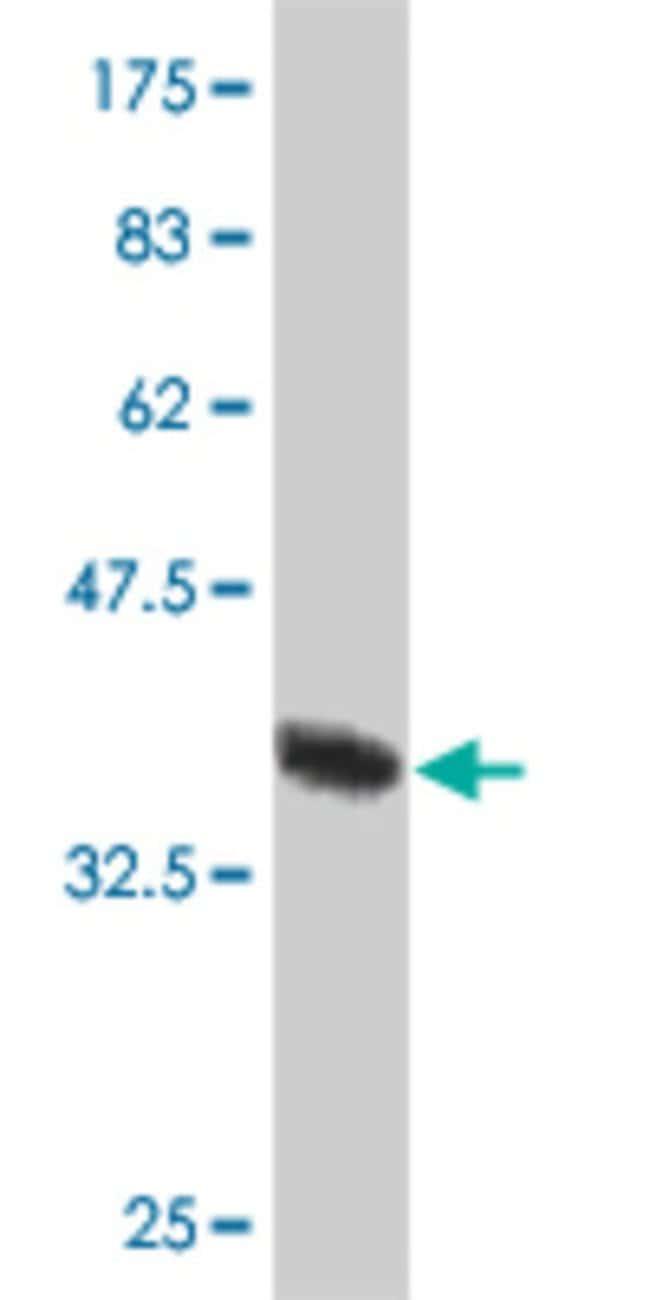 CEP57 (19-128) Mouse anti-Human, Clone: 1E9, Abnova 100μg; Unlabeled:Antibodies