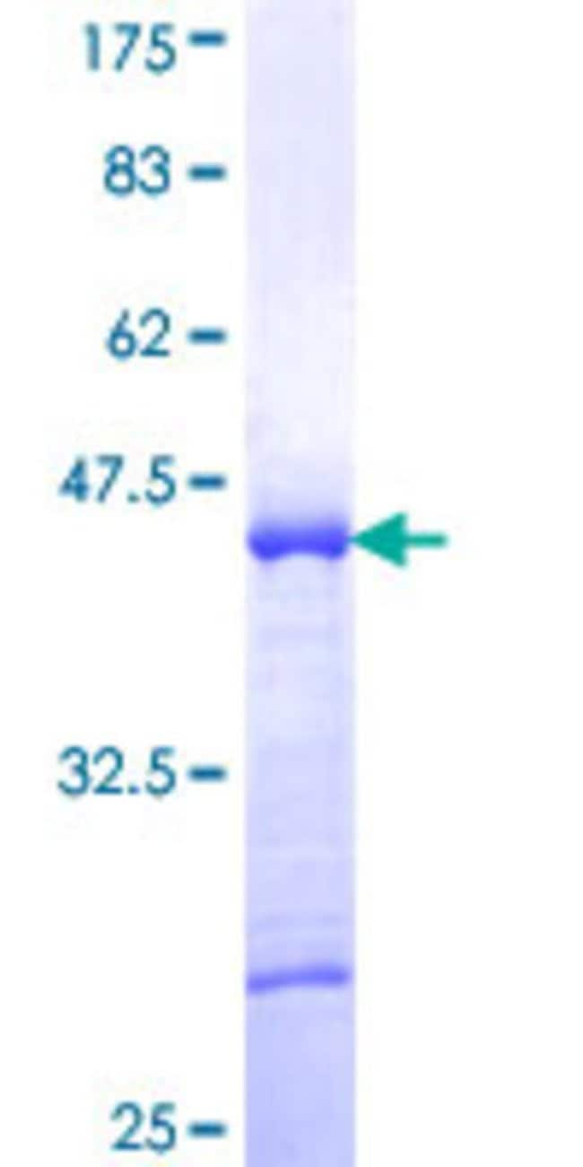 Abnova™Human ST18 Partial ORF (NP_055497, 201 a.a. - 300 a.a.) Recombinant Protein with GST-tag at N-terminal 10μg Abnova™Human ST18 Partial ORF (NP_055497, 201 a.a. - 300 a.a.) Recombinant Protein with GST-tag at N-terminal