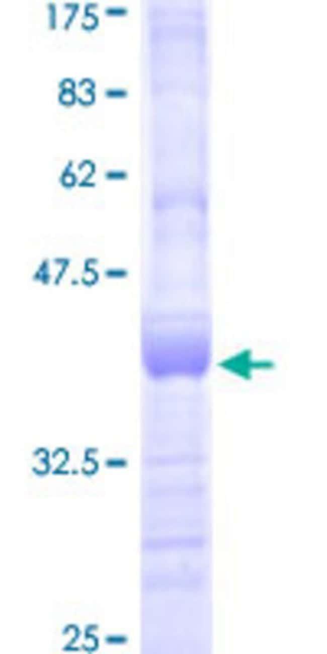 AbnovaHuman ULK2 Partial ORF (AAH34988, 743 a.a. - 843 a.a.) Recombinant