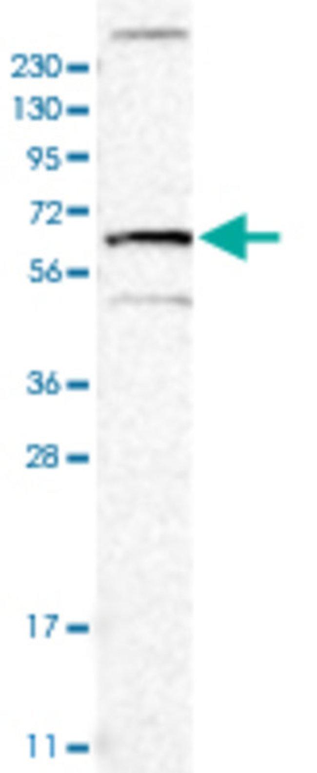 TNFRSF11A Rabbit anti-Human, Polyclonal , Abnova 100μL; Unlabeled:Antibodies