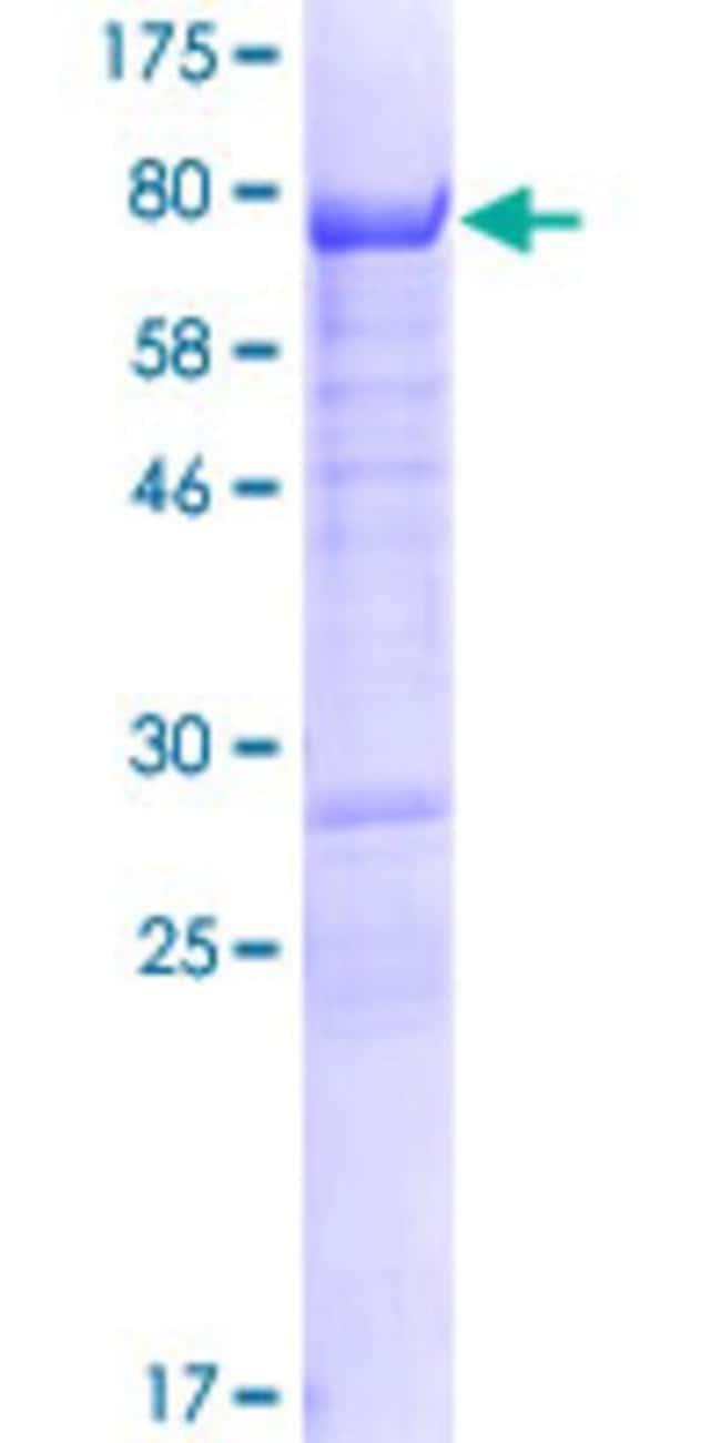 AbnovaHuman GPRIN2 Full-length ORF (AAH11672.1, 1 a.a. - 461 a.a.) Recombinant