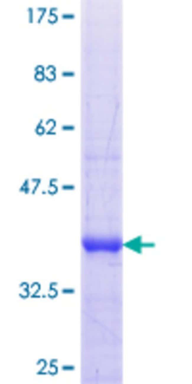AbnovaHuman NOS1AP Partial ORF (NP_055512.1, 99 a.a. - 202 a.a.) Recombinant