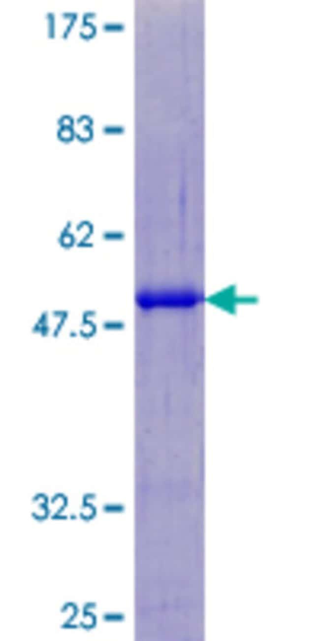 AbnovaHuman SART3 Full-length ORF (AAH41638.1, 1 a.a. - 129 a.a.) Recombinant