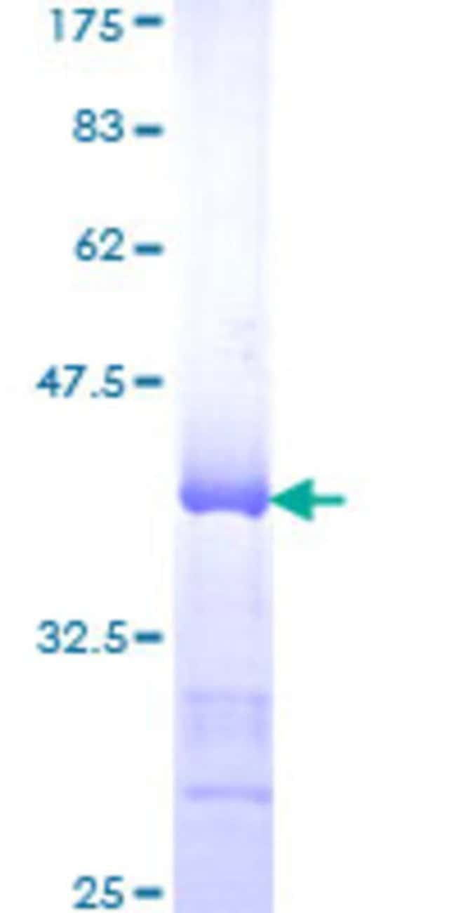 Abnova™Human HDAC9 Partial ORF (NP_478056, 481 a.a. - 570 a.a.) Recombinant Protein with GST-tag at N-terminal 10μg Abnova™Human HDAC9 Partial ORF (NP_478056, 481 a.a. - 570 a.a.) Recombinant Protein with GST-tag at N-terminal