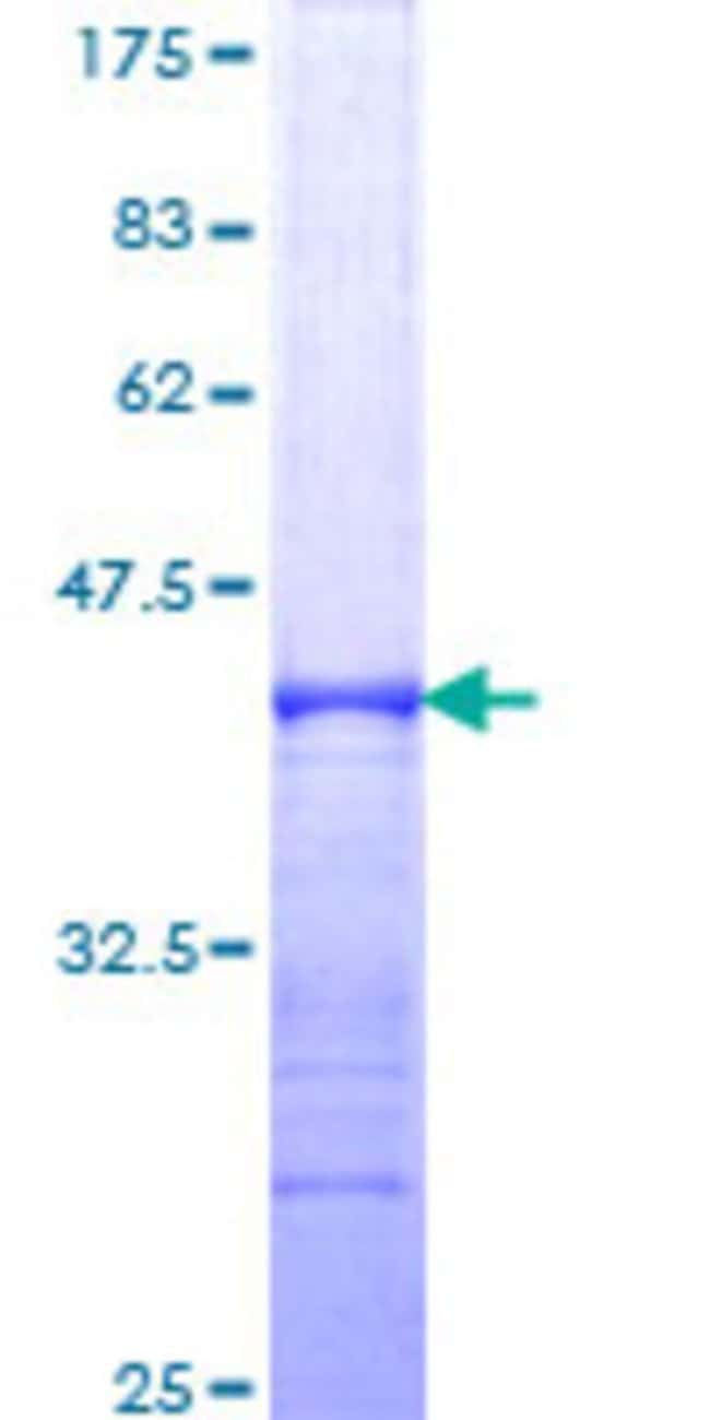 AbnovaHuman SLK Partial ORF (NP_055535, 1126 a.a. - 1235 a.a.) Recombinant