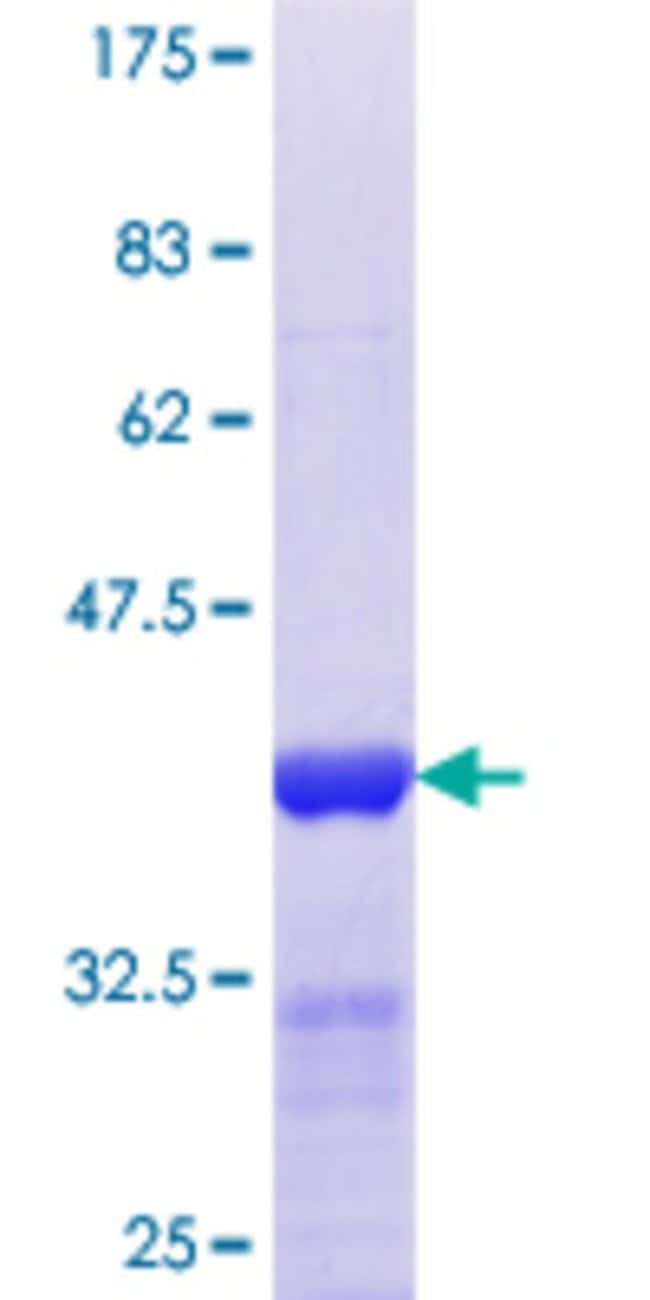 Abnova™Human SNPH Partial ORF (NP_055538.2, 251 a.a. - 348 a.a.) Recombinant Protein with GST-tag at N-terminal 25μg Abnova™Human SNPH Partial ORF (NP_055538.2, 251 a.a. - 348 a.a.) Recombinant Protein with GST-tag at N-terminal