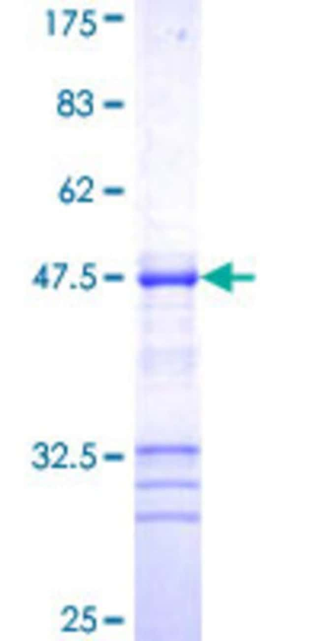 AbnovaHuman ZFYVE16 Partial ORF (NP_055548, 1 a.a. - 100 a.a.) Recombinant