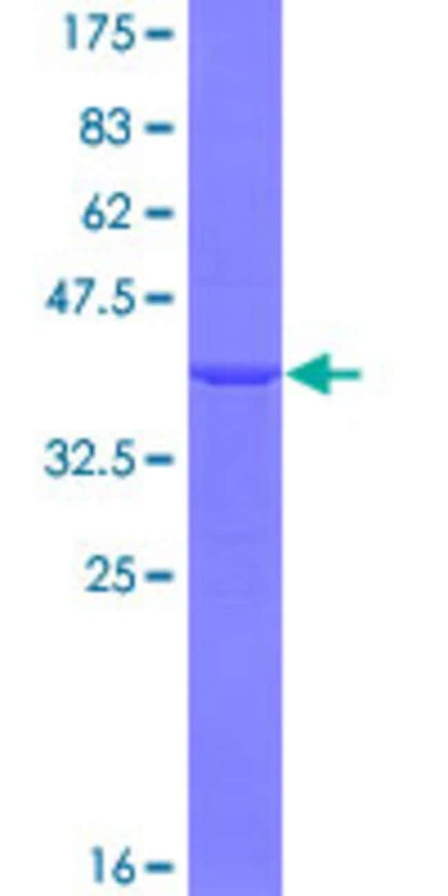 AbnovaHuman DDX48 Partial ORF (NP_055555, 312 a.a. - 411 a.a.) Recombinant