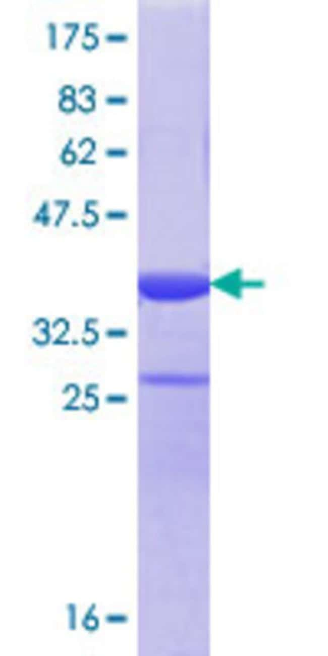 Abnova™Human DHX38 Partial ORF (NP_054722.2, 342 a.a. - 450 a.a.) Recombinant Protein with GST-tag at N-terminal 10μg Abnova™Human DHX38 Partial ORF (NP_054722.2, 342 a.a. - 450 a.a.) Recombinant Protein with GST-tag at N-terminal