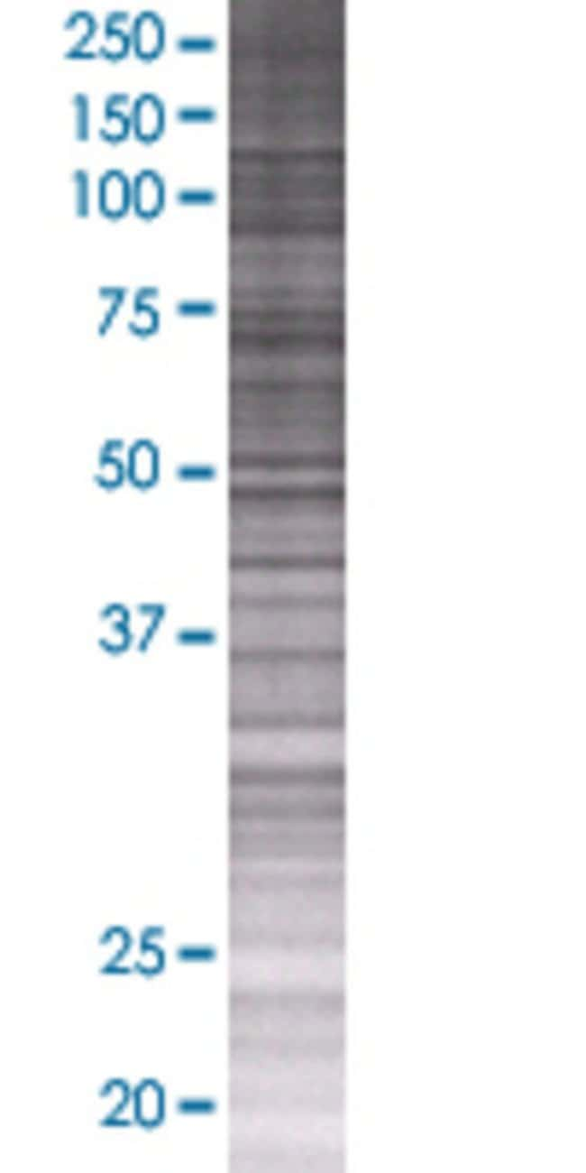 Abnova PTDSS1 293T Cell Transient Overexpression Lysate (Denatured) 100µL:Life