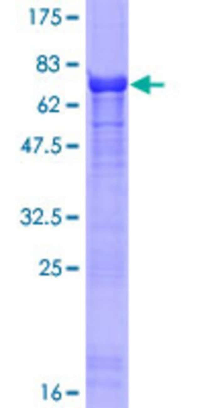 AbnovaHuman SERTAD2 Full-length ORF (NP_055570.1, 1 a.a. - 314 a.a.) Recombinant