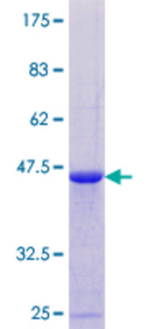 AbnovaHuman DAZAP2 Full-length ORF (NP_055579.1, 1 a.a. - 168 a.a.) Recombinant