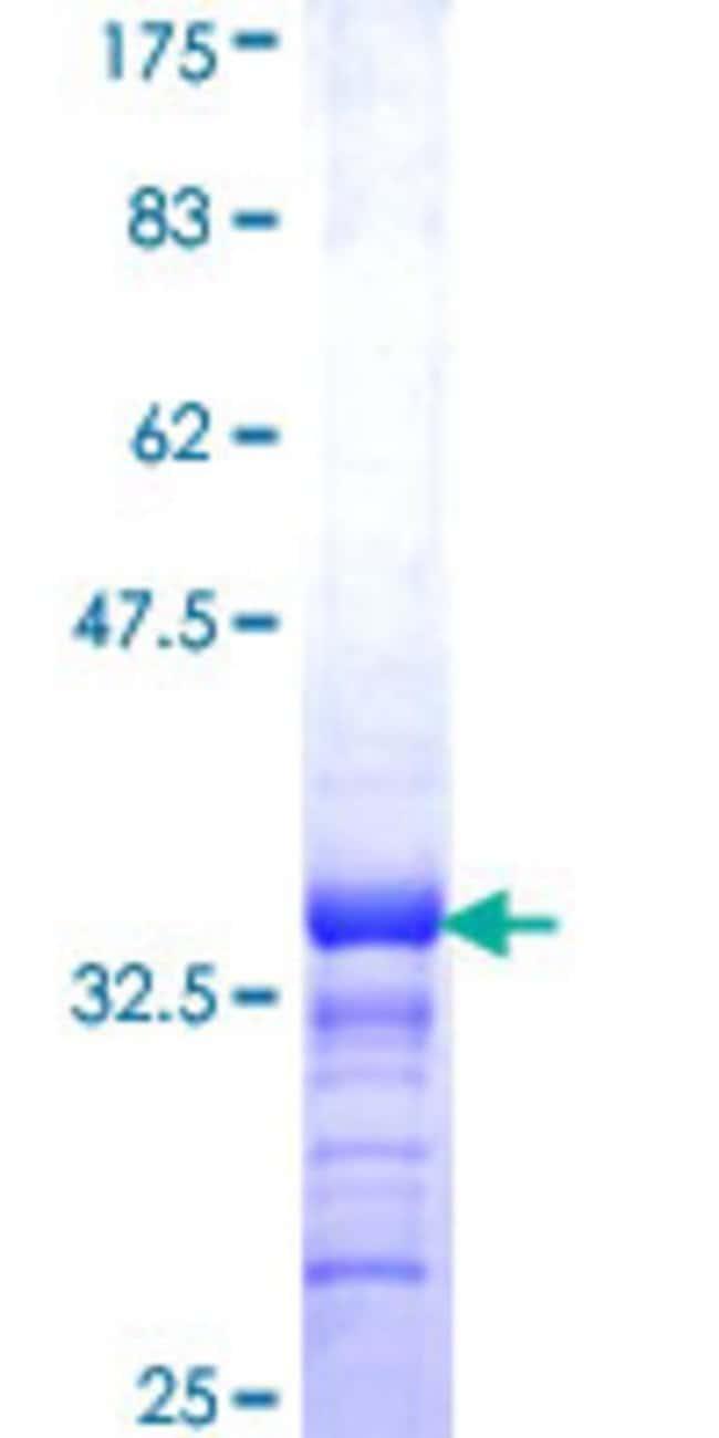 AbnovaHuman DAZAP2 Partial ORF (NP_055579, 93 a.a. - 168 a.a.) Recombinant
