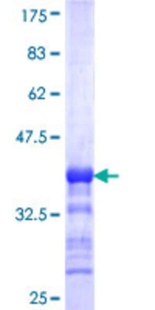 AbnovaHuman IHPK1 Partial ORF (NP_001006115, 182 a.a. - 275 a.a.) Recombinant