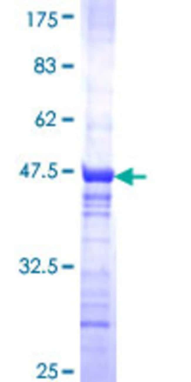 Abnova™ Human RNF40 Partial ORF (NP_055586, 102 a.a. - 200 a.a.) Recombinant Protein with GST-tag at N-terminal 25μg Abnova™ Human RNF40 Partial ORF (NP_055586, 102 a.a. - 200 a.a.) Recombinant Protein with GST-tag at N-terminal