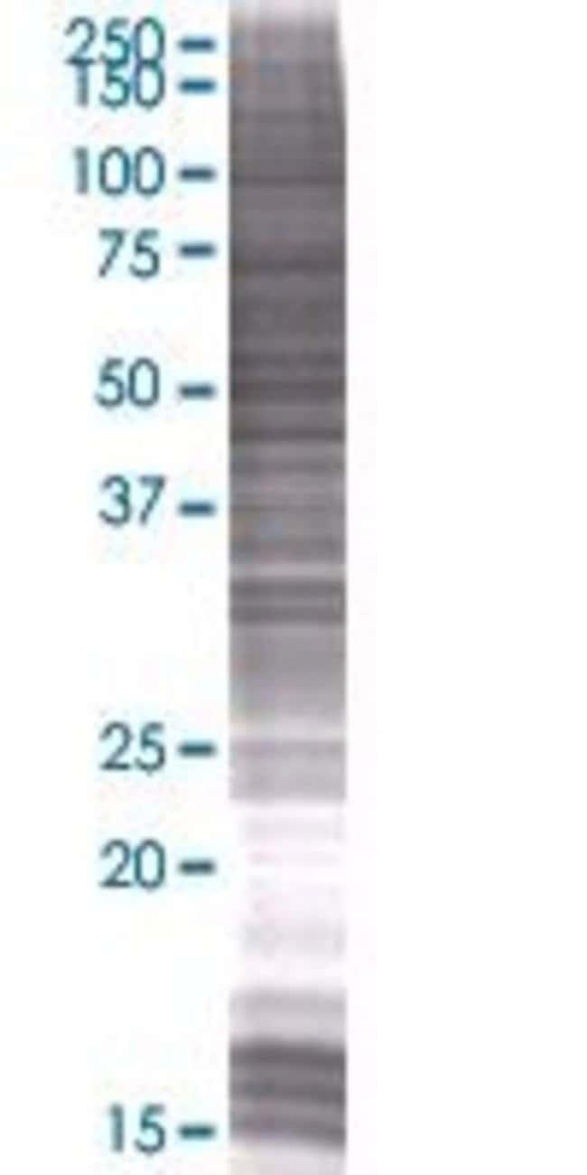 Abnova KIAA0141 293T Cell Transient Overexpression Lysate (Denatured) (T01)