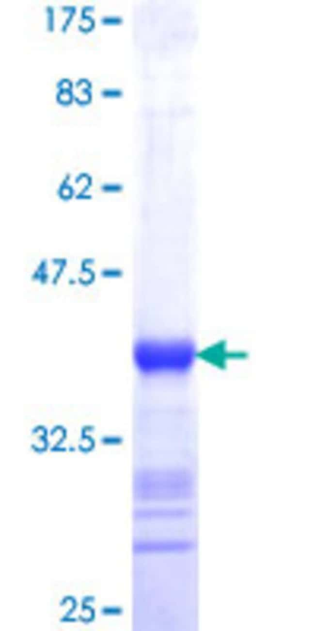 Abnova™Human SPATA2 Partial ORF (NP_006029, 422 a.a. - 519 a.a.) Recombinant Protein with GST-tag at N-terminal 25μg Abnova™Human SPATA2 Partial ORF (NP_006029, 422 a.a. - 519 a.a.) Recombinant Protein with GST-tag at N-terminal