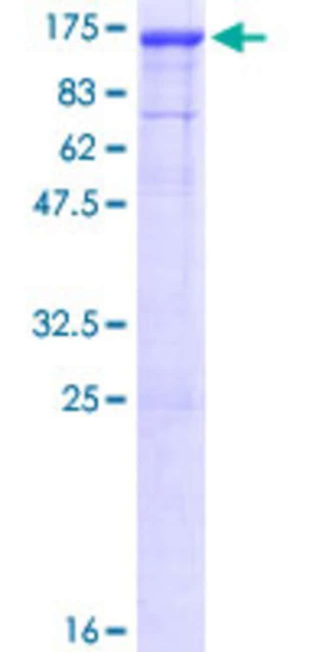AbnovaHuman DNAJC6 Full-length ORF (NP_055602.1, 1 a.a. - 913 a.a.) Recombinant