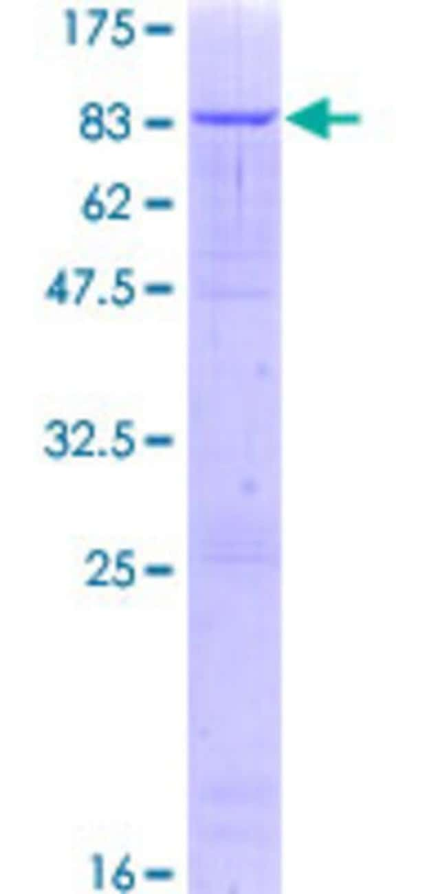 Abnova™Human ZNF623 Full-length ORF (NP_055604.3, 1 a.a. - 536 a.a.) Recombinant Protein with GST-tag at N-terminal 10μg Abnova™Human ZNF623 Full-length ORF (NP_055604.3, 1 a.a. - 536 a.a.) Recombinant Protein with GST-tag at N-terminal