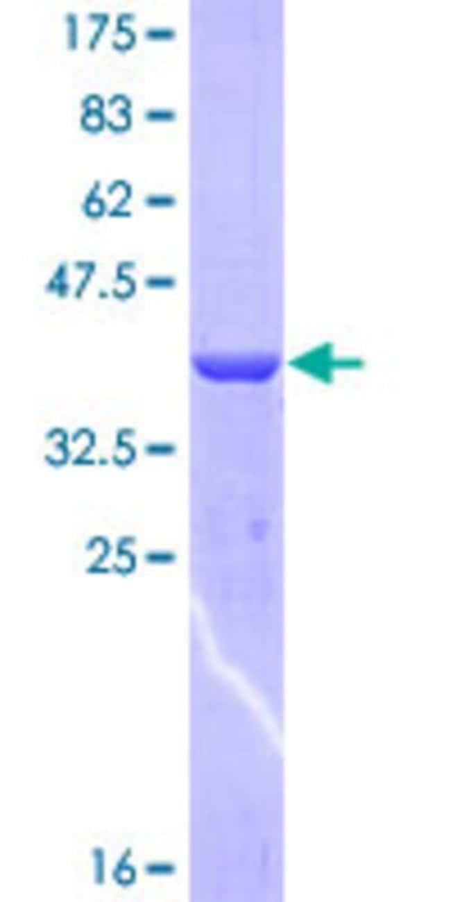 AbnovaHuman HEPH Partial ORF (NP_620074, 315 a.a. - 424 a.a.) Recombinant