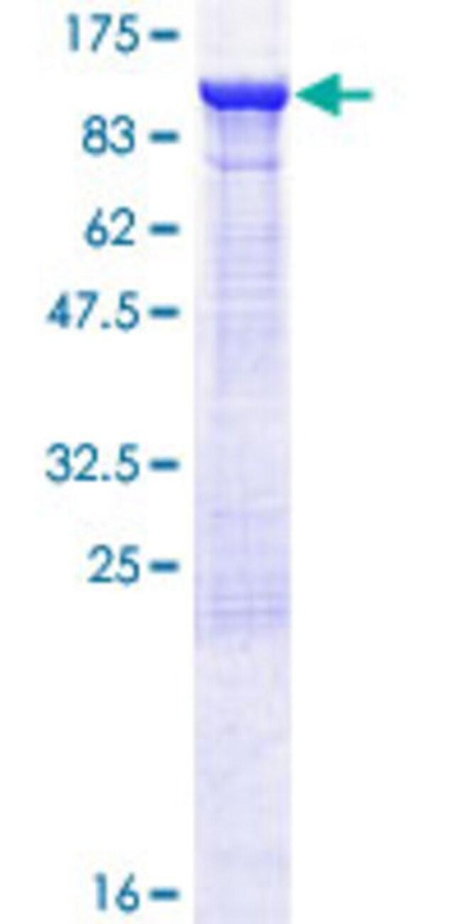AbnovaHuman ELMO1 Full-length ORF (NP_055615.8, 1 a.a. - 727 a.a.) Recombinant