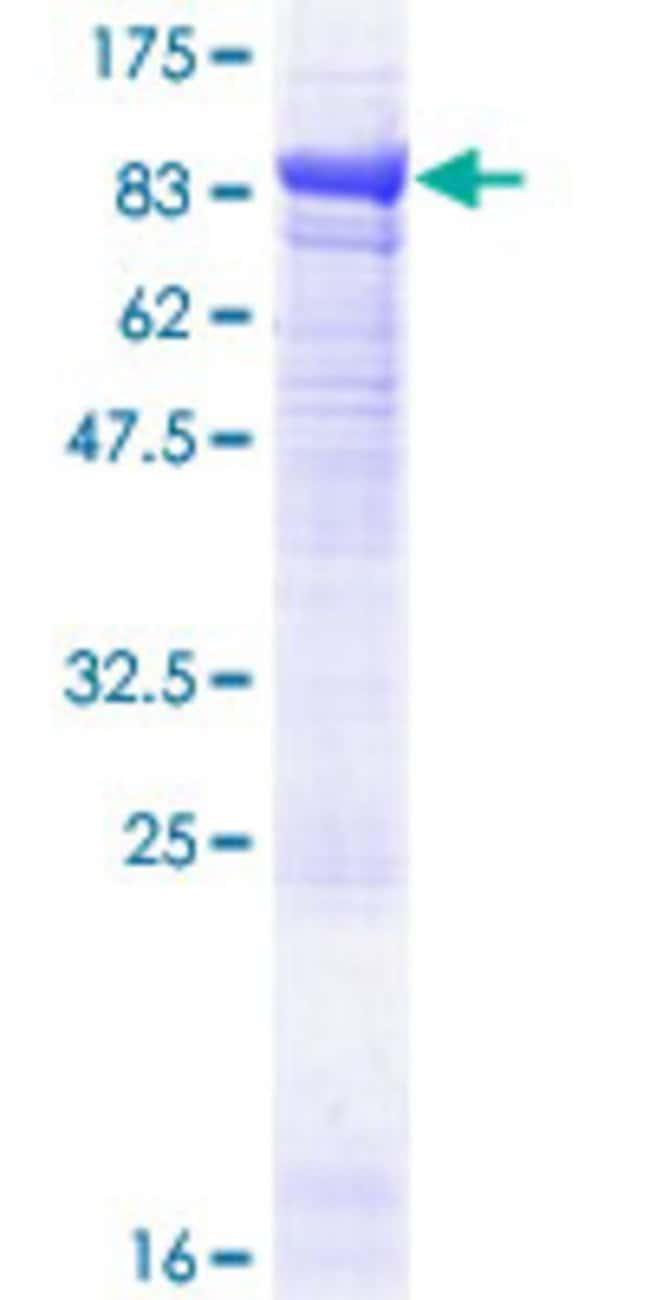 AbnovaHuman EPM2AIP1 Full-length ORF (NP_055620.1, 1 a.a. - 607 a.a.) Recombinant