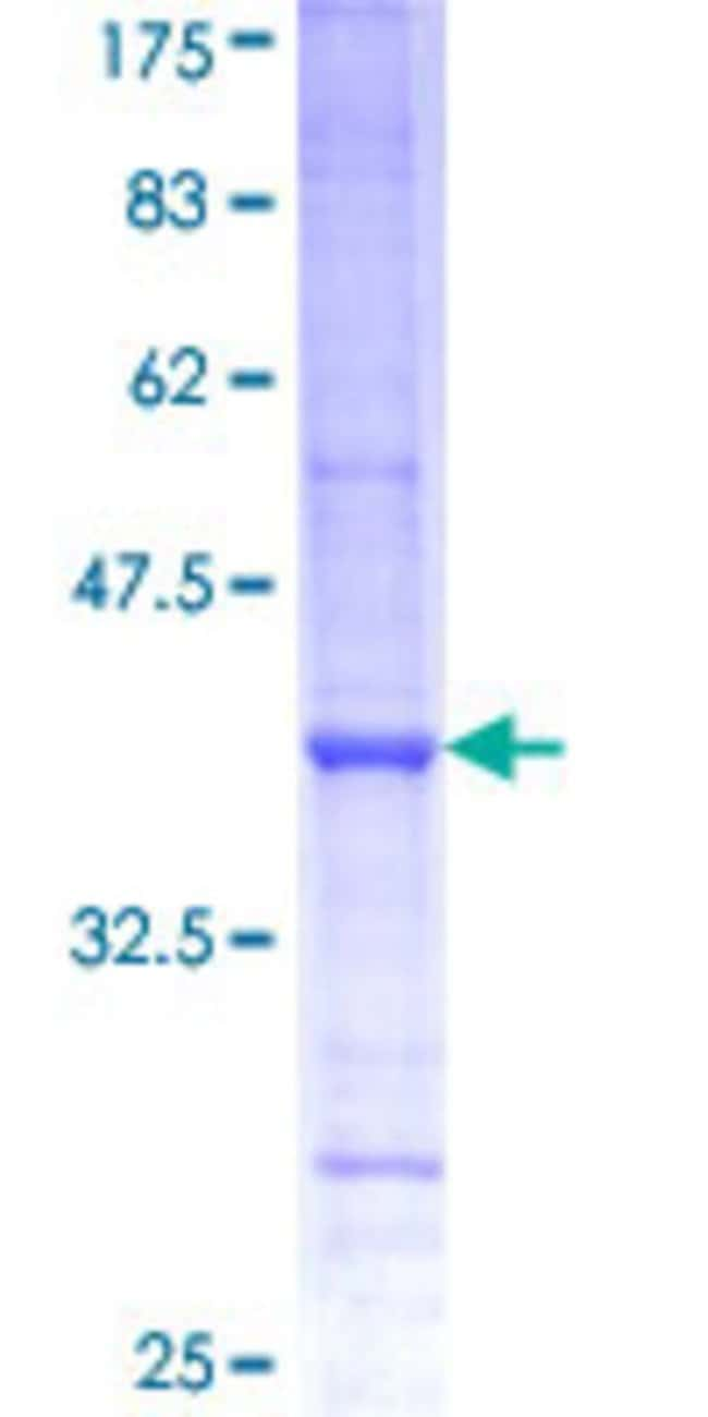 AbnovaHuman PSMD6 Partial ORF (NP_055629, 292 a.a. - 389 a.a.) Recombinant
