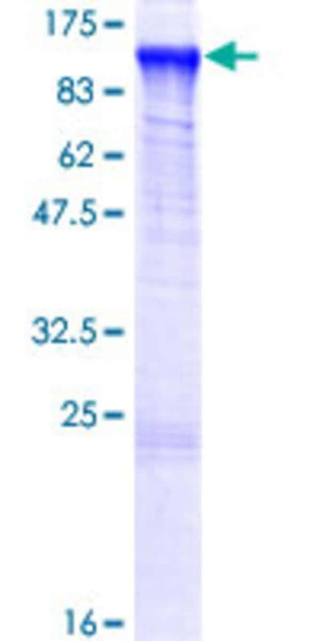 Abnova™ Human MED24 Full-length ORF (NP_055630.2, 1 a.a. - 989 a.a.) Recombinant Protein with GST-tag at N-terminal 25μg Abnova™ Human MED24 Full-length ORF (NP_055630.2, 1 a.a. - 989 a.a.) Recombinant Protein with GST-tag at N-terminal