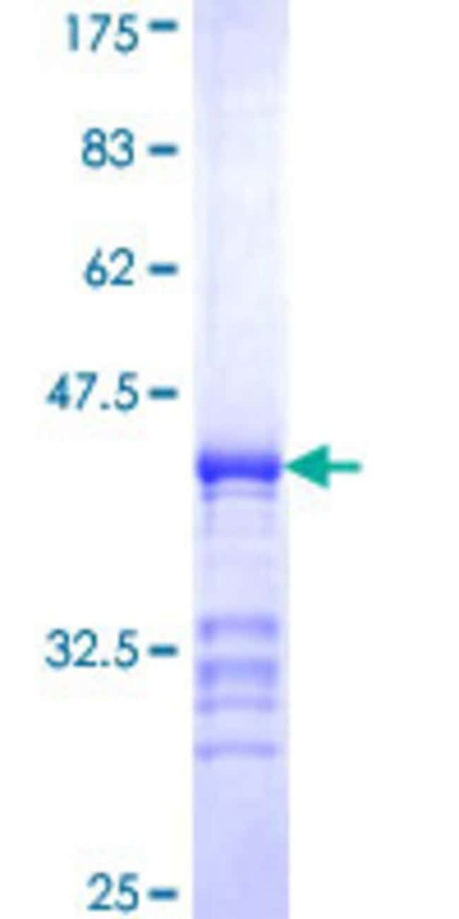 Abnova™Human PJA2 Partial ORF (NP_055634, 302 a.a. - 400 a.a.) Recombinant Protein with GST-tag at N-terminal 10μg Abnova™Human PJA2 Partial ORF (NP_055634, 302 a.a. - 400 a.a.) Recombinant Protein with GST-tag at N-terminal
