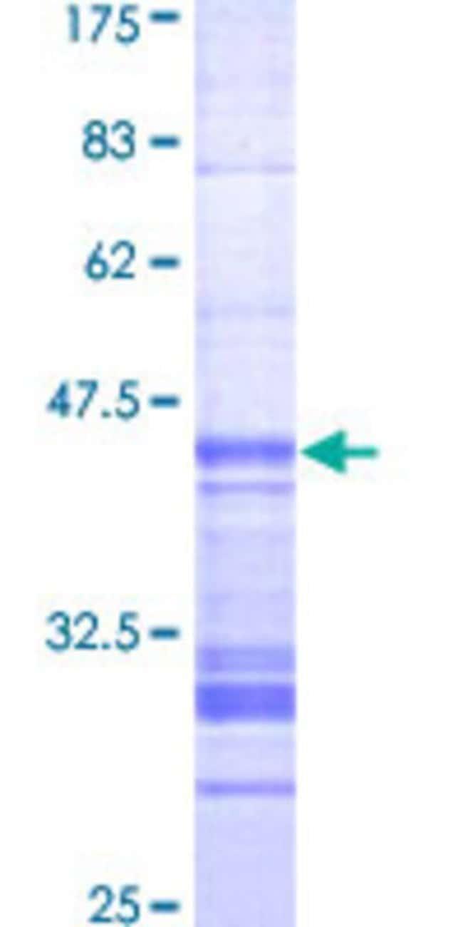 AbnovaHuman TLK1 Partial ORF (AAH32657, 111 a.a. - 230 a.a.) Recombinant