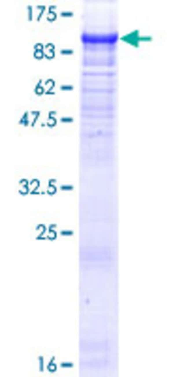 Abnova™Human ZBTB39 Full-length ORF (NP_055645.1, 1 a.a. - 712 a.a.) Recombinant Protein with GST-tag at N-terminal 25μg Abnova™Human ZBTB39 Full-length ORF (NP_055645.1, 1 a.a. - 712 a.a.) Recombinant Protein with GST-tag at N-terminal