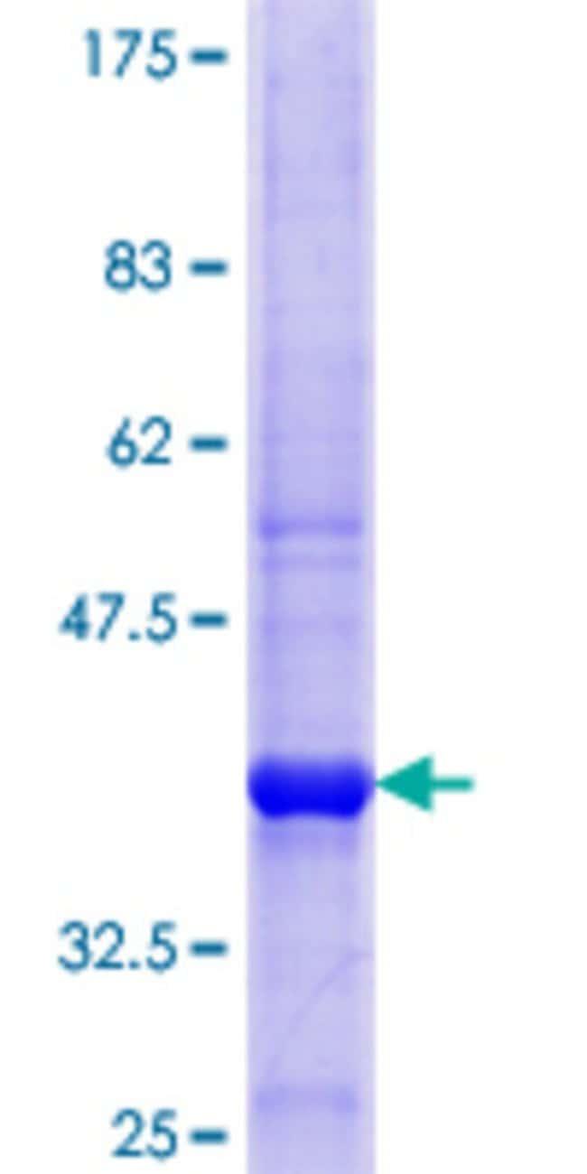 AbnovaHuman OSBPL2 Partial ORF (NP_653081.1, 294 a.a. - 393 a.a.) Recombinant