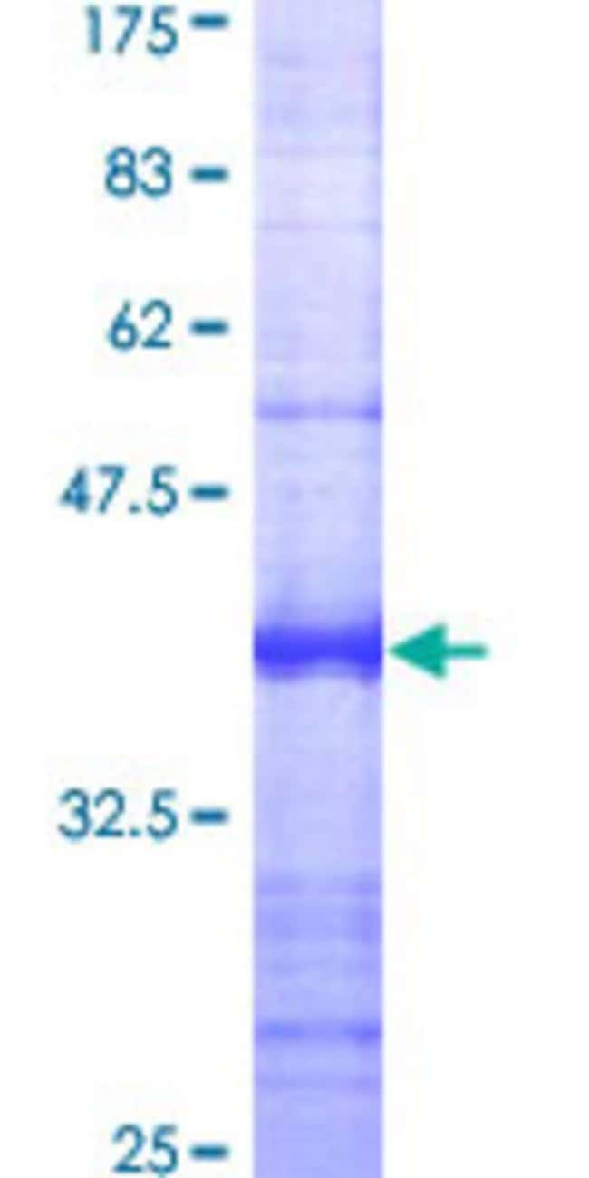 Abnova™Human RHOBTB1 Partial ORF (AAH32848, 494 a.a. - 603 a.a.) Recombinant Protein with GST-tag at N-terminal 10μg Abnova™Human RHOBTB1 Partial ORF (AAH32848, 494 a.a. - 603 a.a.) Recombinant Protein with GST-tag at N-terminal