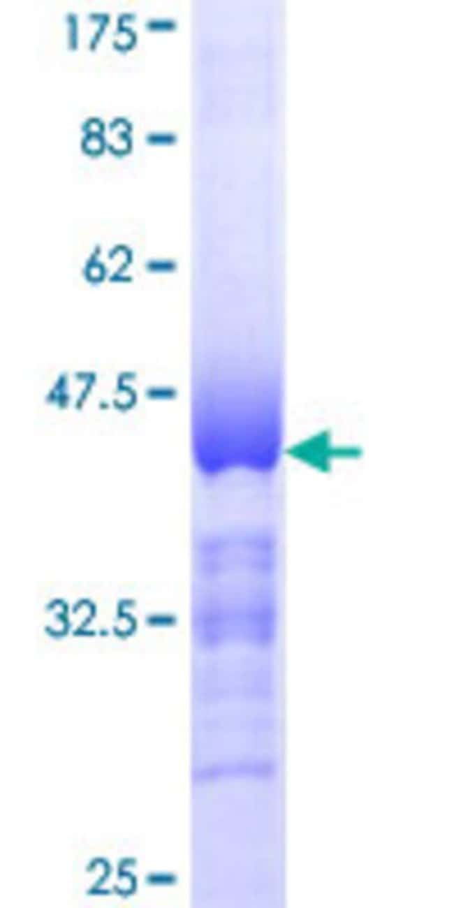 AbnovaHuman NUAK1 Partial ORF (NP_055655, 371 a.a. - 470 a.a.) Recombinant