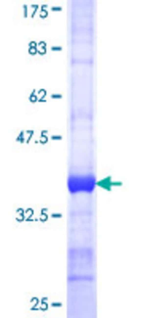 AbnovaHuman SNAP91 Partial ORF (NP_055656, 156 a.a. - 255 a.a.) Recombinant