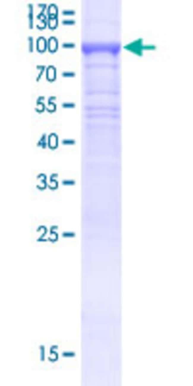 Abnova Human KLHL21 Full-length ORF (BAG52104.1, 1 a.a. - 597 a.a.) Recombinant