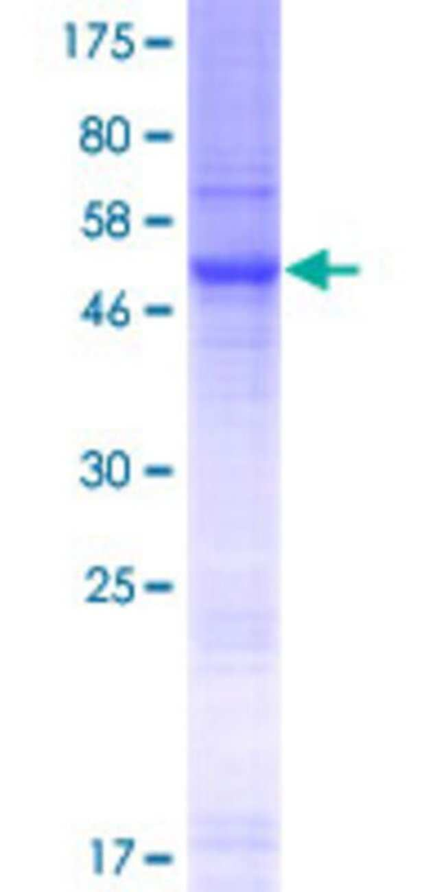 AbnovaHuman SLC35E2 Full-length ORF (NP_878258.1, 1 a.a. - 266 a.a.) Recombinant