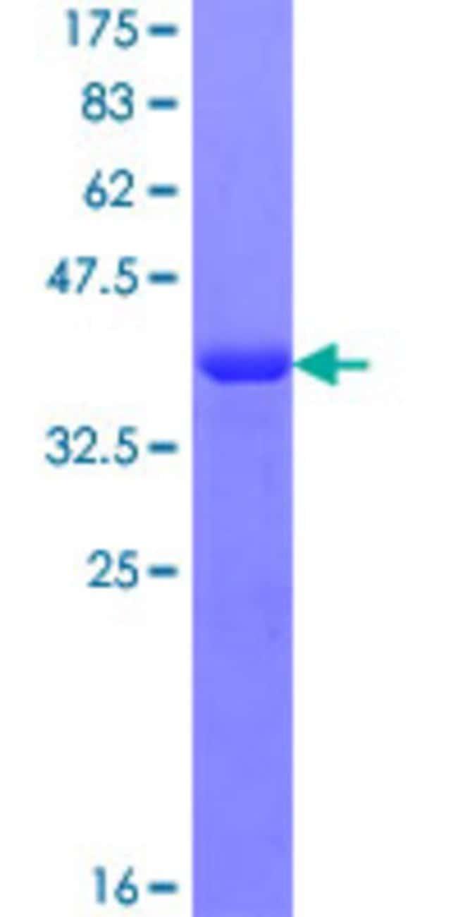Abnova Human RABGAP1L Partial ORF (NP_055672.3, 1 a.a. - 110 a.a.) Recombinant