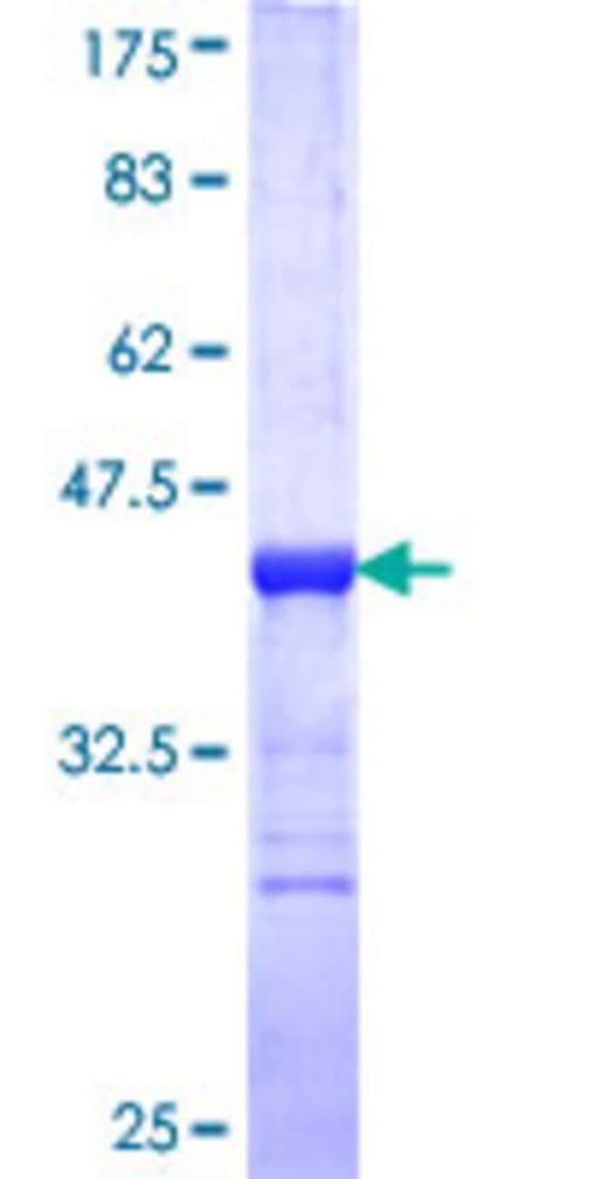 Abnova Human HELZ Partial ORF (NP_055692, 1 a.a. - 100 a.a.) Recombinant
