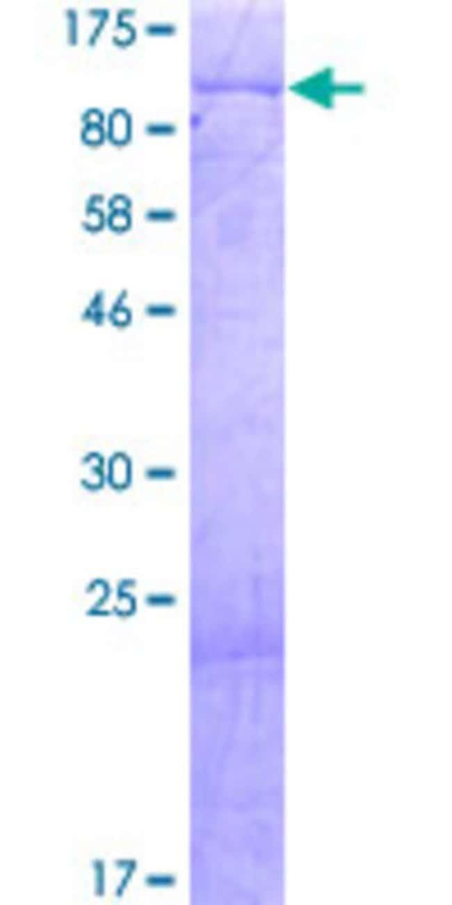 Abnova Human KIAA0020 Full-length ORF (AAH16137.2, 1 a.a. - 648 a.a.) Recombinant