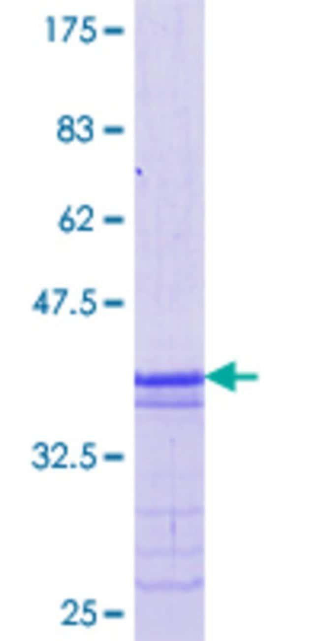 Abnova Human MAFB Partial ORF (NP_005452.2, 1 a.a. - 53 a.a.) Recombinant