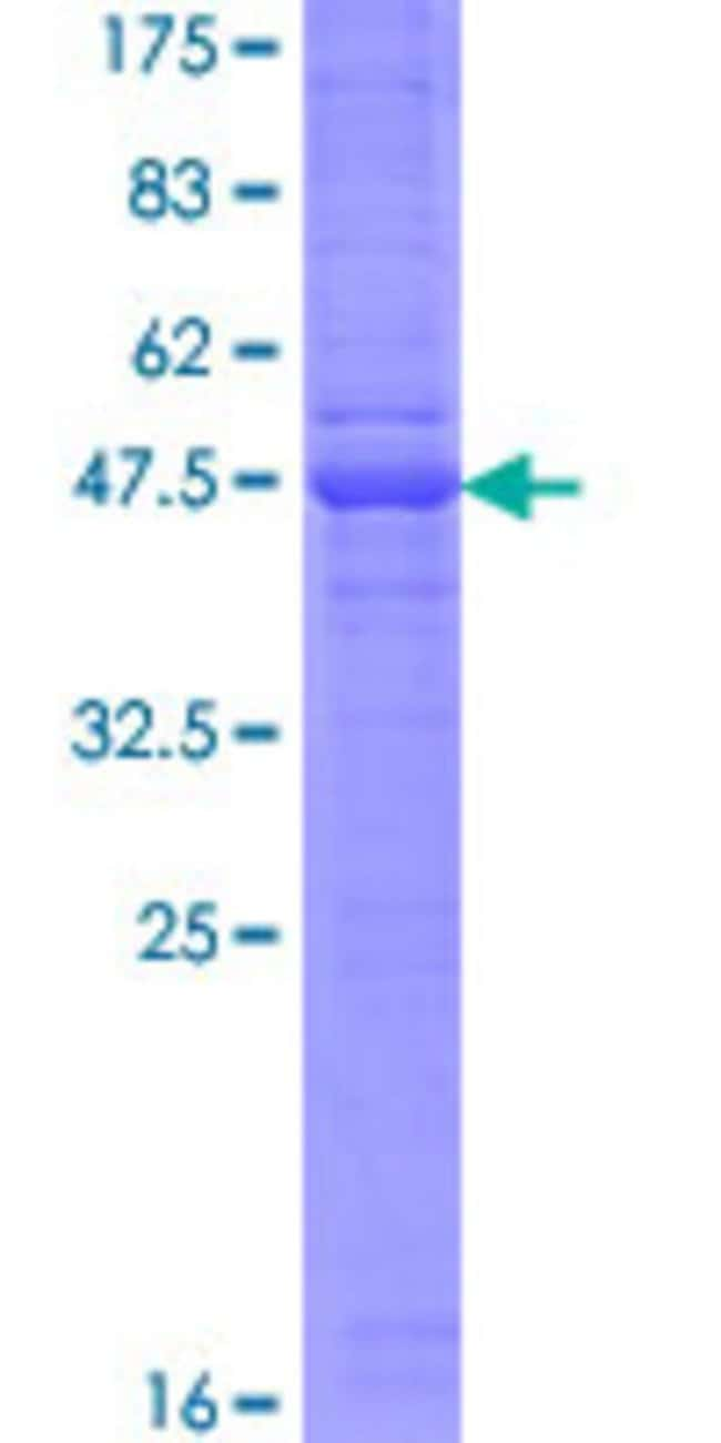 Abnova™Human CD302 Full-length ORF (AAH20646.1, 1 a.a. - 170 a.a.) Recombinant Protein with GST-tag at N-terminal 10μg Abnova™Human CD302 Full-length ORF (AAH20646.1, 1 a.a. - 170 a.a.) Recombinant Protein with GST-tag at N-terminal